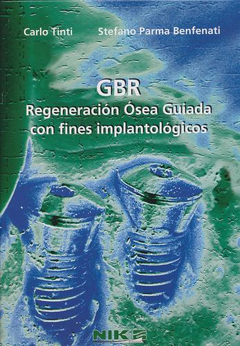 GBR Regeneración Ósea Guiada con fines implantológicos - Carlo Tinti