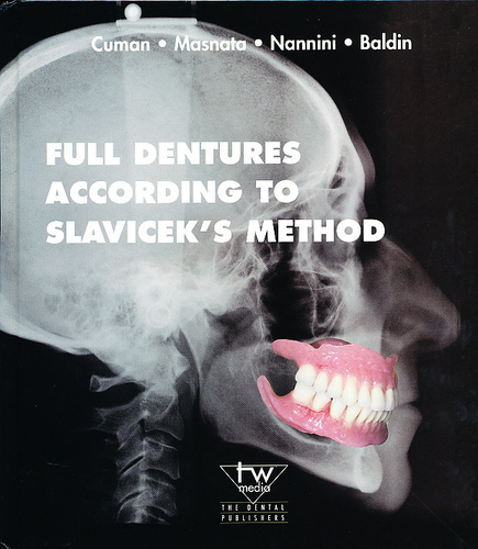 Full Dentures According to Slavicek's Method - Cuman