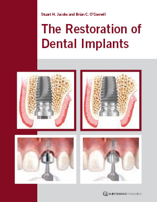 dental implant restoration principles and procedures pdf