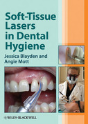 SOFT-TISSUE LASERS IN DENTAL HYGIENE - BLAYDEN / MOTT