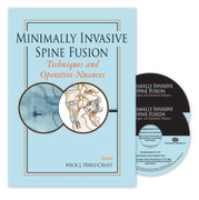 Minimally Invasive Spine Fusion: Techniques and Operative Nuances 2-DVD Set - Perez-Cruet