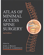 Atlas of Minimal Access Spine Surgery - Regan / Lieberman