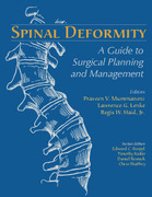 Spinal Deformity: A Guide to Surgical Planning and Management - Mummanemi / Lenke
