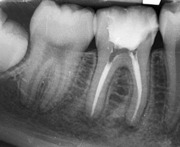 Endo or Implant: Rational decision making from an Endodontist's viewpoint - Buchanan