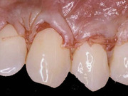 Crown Lengthening - Part 1 of Achieving Esthetic Predictability in Periodontology (2 Part Series) - Saadoun