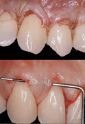 Esthetic Periodontology (Crown Lengthening & Root Coverage) - Saadoun