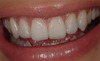 No Post No Crown - Biomimetic Restorative Dentistry - Pascal Magne