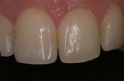 Comparison and Contrast of Direct vs. Indirect Anterior Restorations in Natural Teeth - Papazoglou