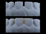 Veneer Restorations - Essential Steps for Esthetic Success - Oswaldo Scopin