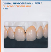 Dental Photography - Level 1 - Schoenbaum