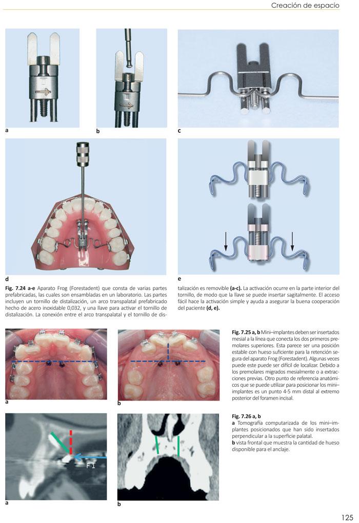 Brackets de autoligado en ortodoncia conceptos y tecnicas for Tecnicas de coccion modernas