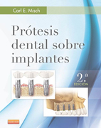 PROTESIS DENTAL SOBRE IMPLANTES 2 ED - Carl Misch