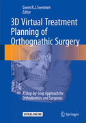 3D VIRTUAL TREATMENT PLANNING OF ORTHOGNATHIC SURGERY - Swennen