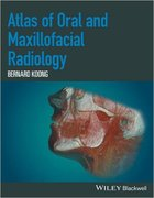 ATLAS OF ORAL AND MAXILOFACIAL RADIOLOGY - Bernard Koong