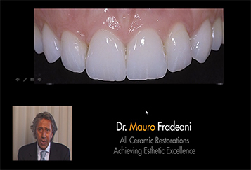 All Ceramic Restorations: Achieving Esthetic Excellence - Fradeani