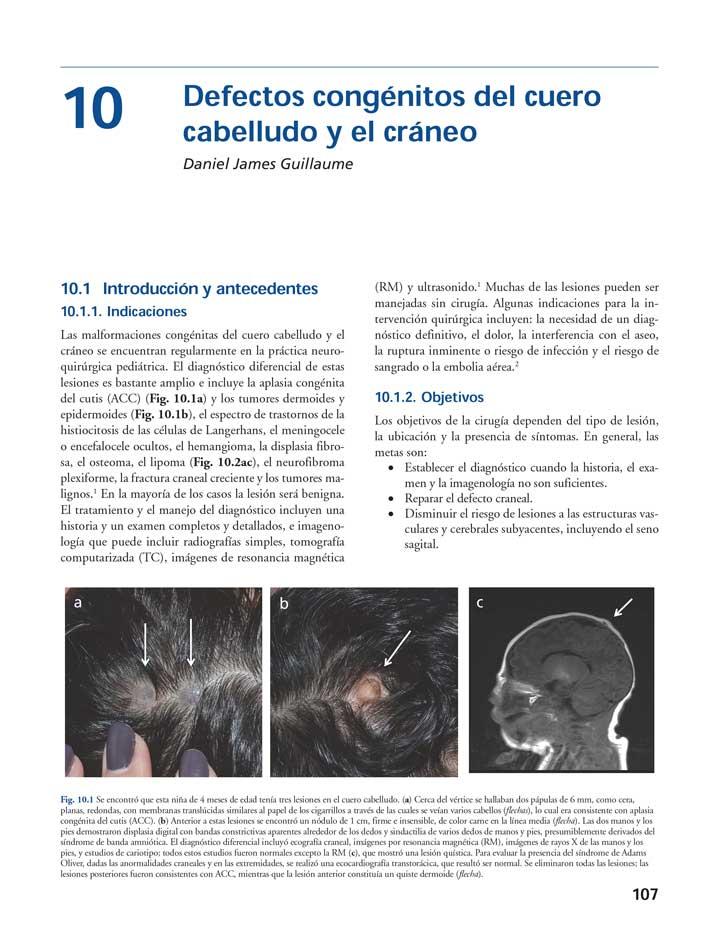 NEUROCIRUGIA PEDIATRICA 2 VOL - Cohen. <a href=
