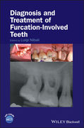 DIAGNOSIS AND TREATMENT OF FURCATION-INVOLVED TEETH - Nibali
