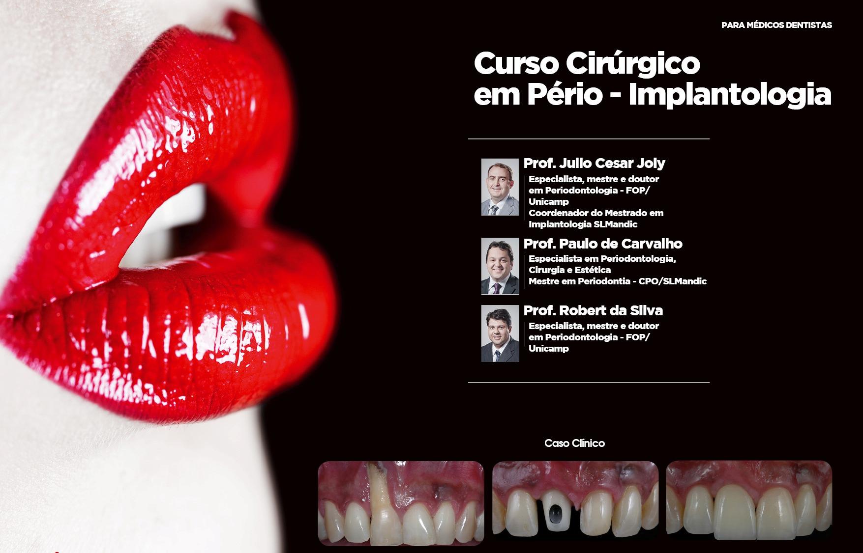 Curso Cirúrgico Demonstrativo em Perio-Implantologia Estética - Prof. Julio Cesar Joly Prof. Paulo de Carvalho Prof. Robert da Silva - Maxillaris