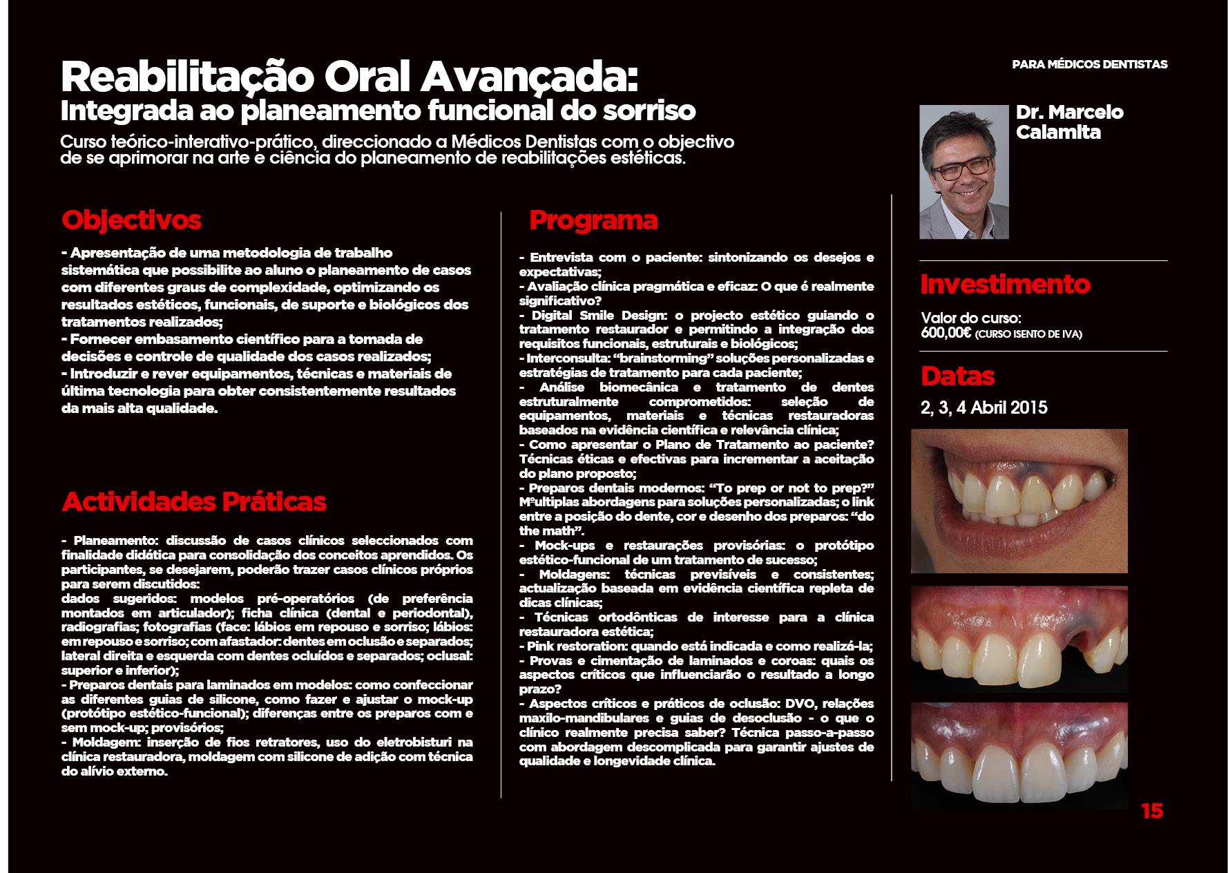Curso Rehabilitaçao Oral Avançada