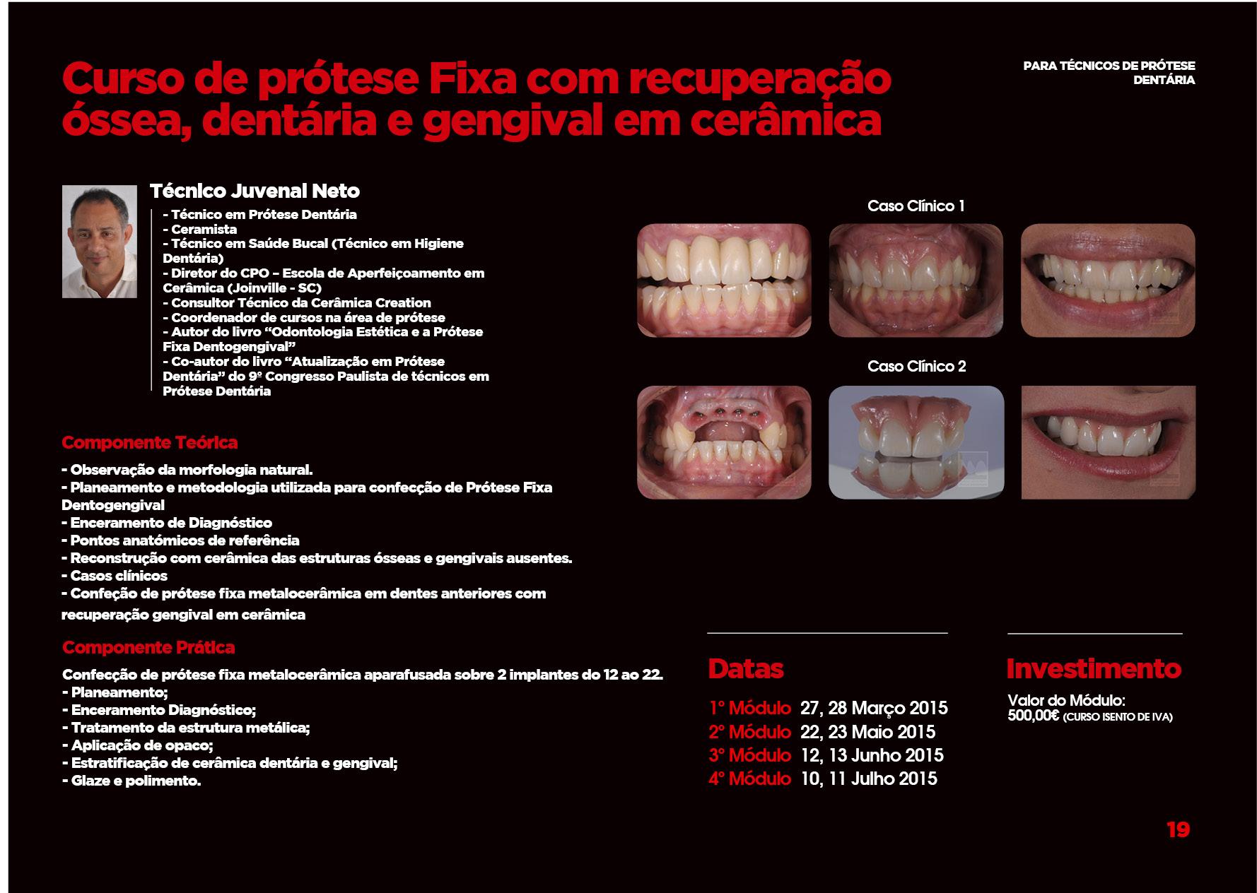 Curso de Prótese Fixa com recuperaçao Óssea, dentára e gengival em cerâmica - Maxillaris