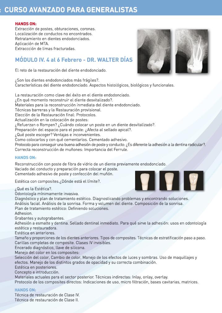 DENTSPLY Curso Modular avanzado para generalistas Endodoncia y Estética dental Modulo 4