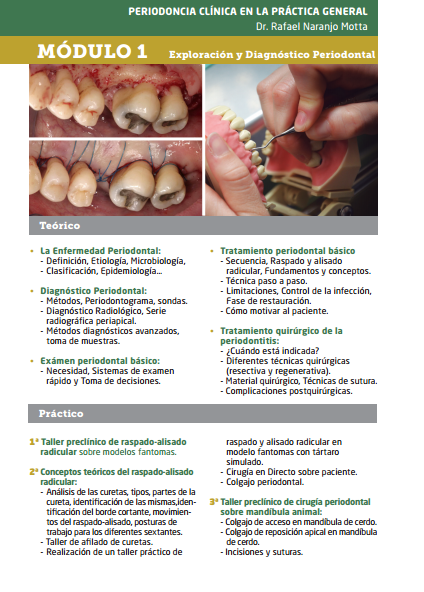 Periodoncia clínica del diagnóstico al tratamiento quirúrgico - CEODONT