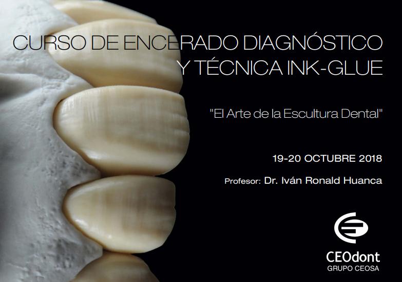 Curso de encerado diagnóstico y técnica INK-GLUE - Ronald Huanca